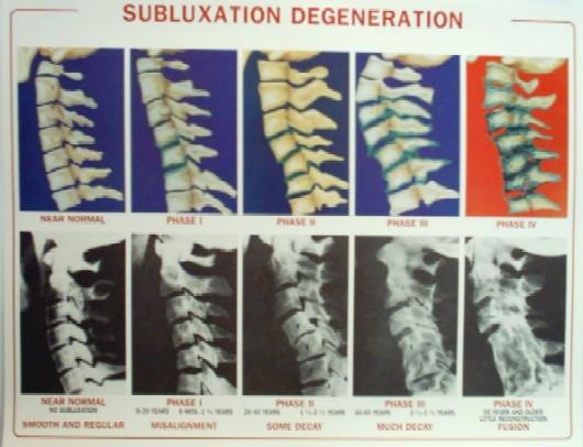 subluxation-degeneration-poster